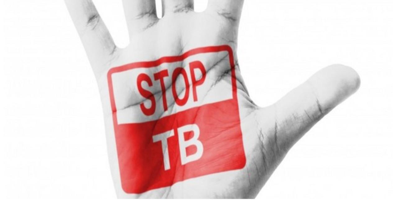 24 marzo 2019 - Tbc Day. Aids, Tubercolosi e Malaria: fatti e stereotipi