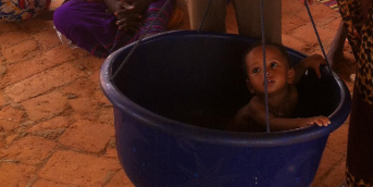 Ciad: screening contro la malnutrizione